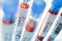 Coronavirus: 4 nuovi casi in Puglia, la metà nel barese